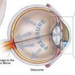 Glaucomaproductieoogvocht